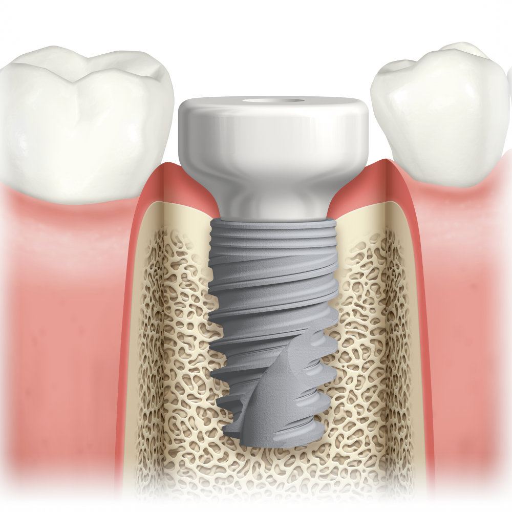 Dental Implant - Peek healing abutment