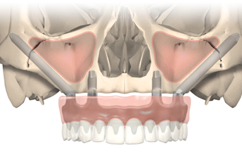 Zygoma diagram showing position of implants